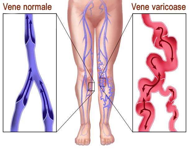 3 membrele inferioare varicoase